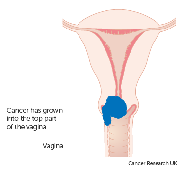 Diagram showing stage 2A cervical cancer