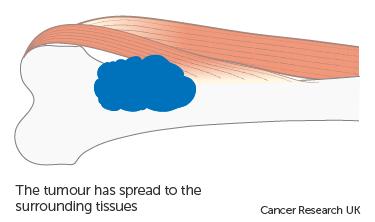 Diagram showing stage 2B bone cancer