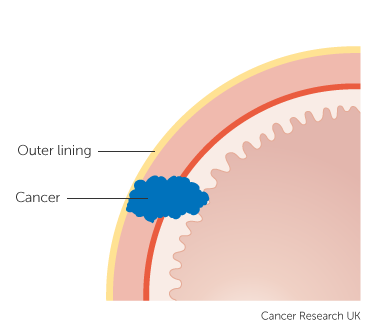 Diagram showing stage 2B stomach cancer (clinical staging) 1 of 2