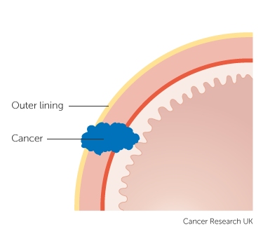 Diagram showing stage 2B stomach cancer (clinical staging) 2 of 2