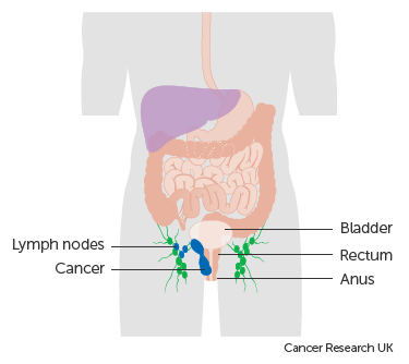 Diagram showing stage 3 anal cancer