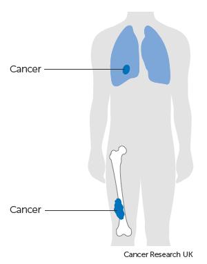 Diagram showing stage 3 bone cancer