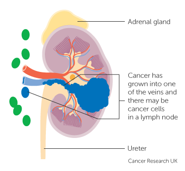Number Stages Kidney Cancer Cancer Research Uk