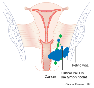 Diagram showing stage 3 vaginal cancer
