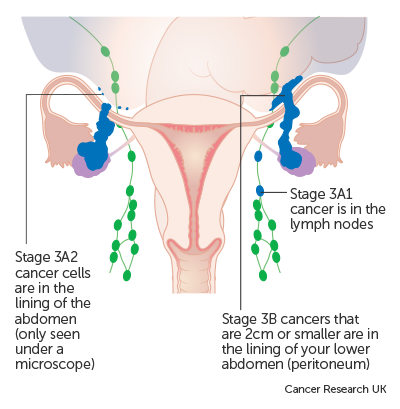Diagram showing stage 3A & 3B ovarian cancer