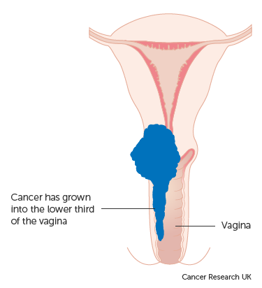 Stage 3 | Cervical cancer | Cancer Research UK