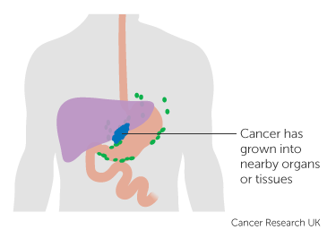 Diagram showing stage 3A stomach cancer (pathological staging) 4 of 4