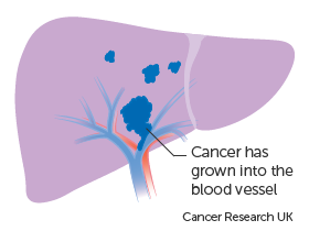 Diagram showing liver cancer growing into a blood vessel
