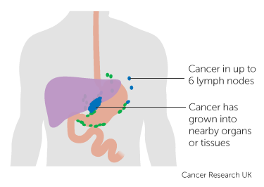 Diagram showing stage 3B stomach cancer (pathological staging) 3 of 3