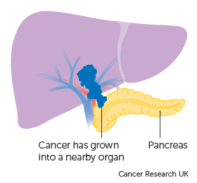 Diagram showing liver cancer growing into a nearby organ