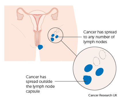 Diagram showing stage 3C vulval cancer