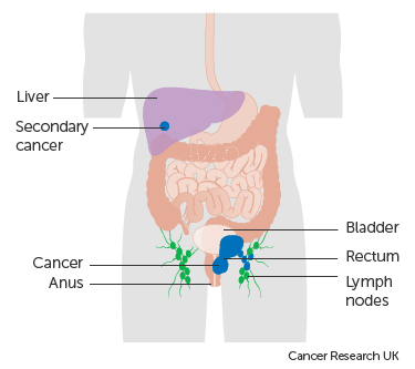 Diagram showing stage 4 anal cancer
