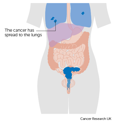 Stage 4 | Cervical cancer | Cancer Research UK