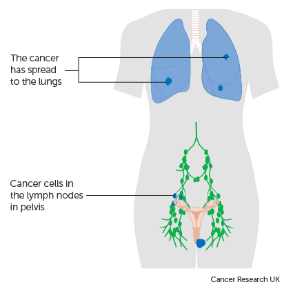 Diagram showing stage 4B vulval cancer