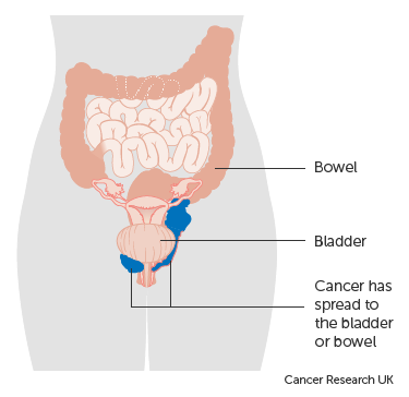 Diagram showing stage 4a vaginal cancer