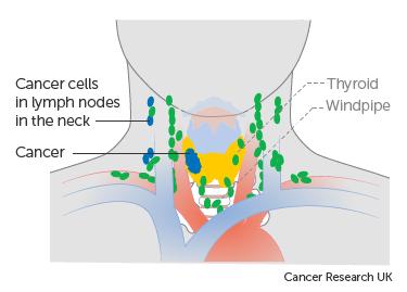 Diagram showing stage N1b thyroid cancer