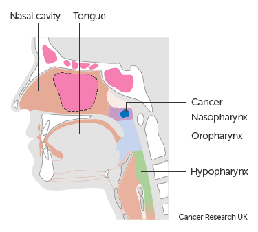Diagram showing stage T1 nasopharyngeal cancer