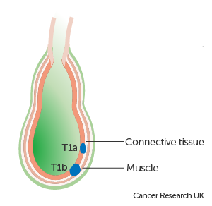 Diagram showing stage T1a and T1b gallbladder cancer