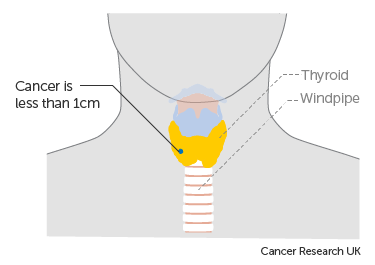Diagram showing stage T1a thyroid cancer