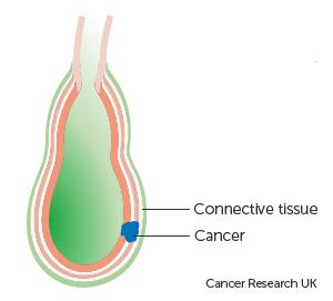 Diagram showing stage T2 gallbladder cancer