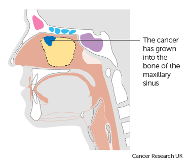Diagram showing stage T2 maxillary sinus cancer