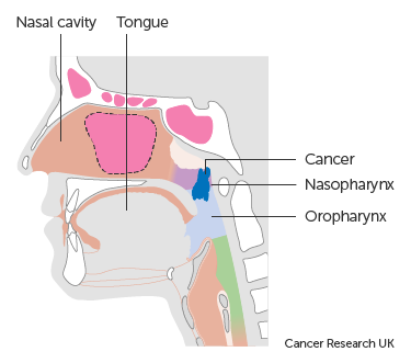 Diagram showing stage T2 nasopharyngeal cancer
