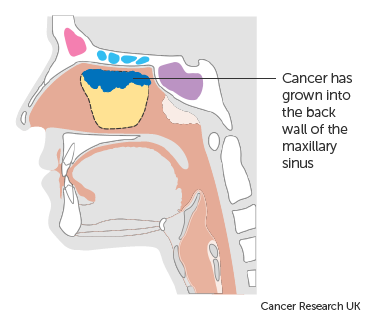 Diagram showing stage T3 maxillary sinus cancer