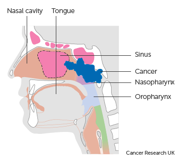 Diagram showing stage T3 nasopharyngeal cancer