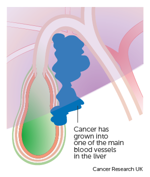 Diagram showing stage T4 gallbladder cancer