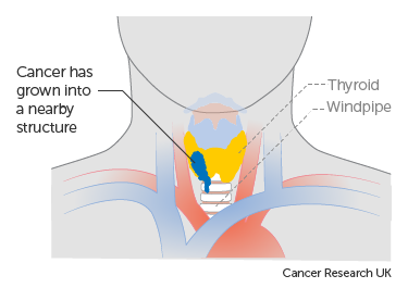 Diagram showing stage T4a thyroid cancer