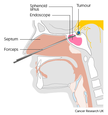 Diagram showing surgery through the nose