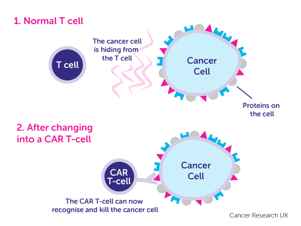 Car T Cell Therapy Immunotherapy Cancer Research Uk