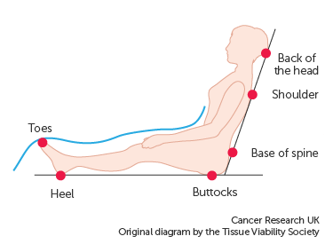 Diagram showing the areas of the body at risk of pressure sores when sitting