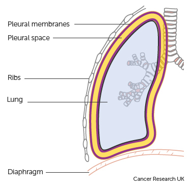 Diagram showing the lungs and pleura