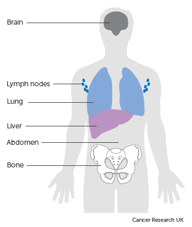 Symptoms of advanced melanoma | Melanoma | Cancer Research UK