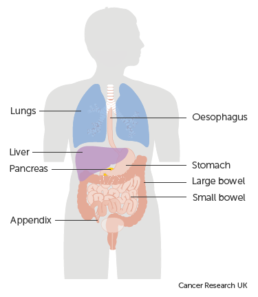 Diagram showing the parts of the body neuroendocrine tumours most commonly develop in