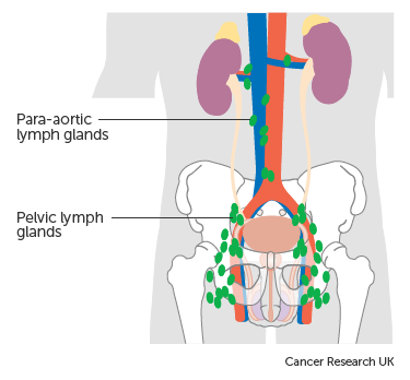 Diagram showing the pelvic and para aortic lymph nodes