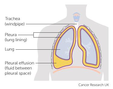 Diagram showing the pleura and pleural effusion