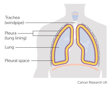 Diagram showing the pleura and pleural space
