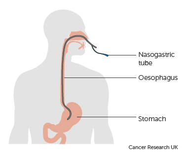 Diagram showing the position of a nasogastric tube