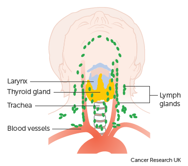Diagram showing the position of the lymph nodes in the neck