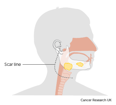 Diagram showing the scar line after surgery to remove the parotid gland (parotidectomy)