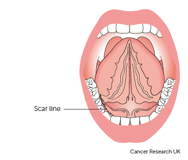 Diagram showing the scar line after surgery to remove the sublingual salivary gland