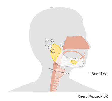 Diagram showing the scar line after surgery to remove the submandibular gland