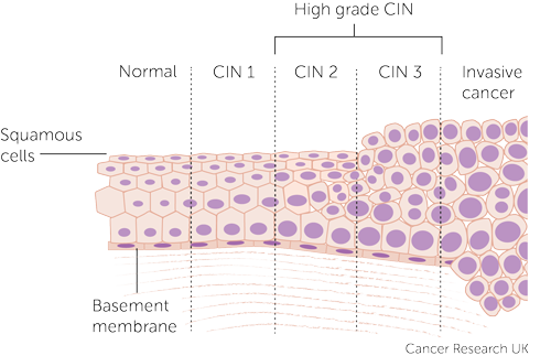 Diagram showing the stages of CIN