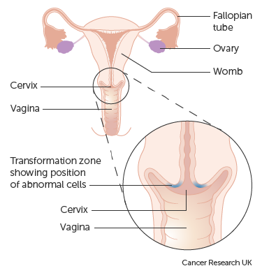 Diagram showing the transformation zone on the cervix