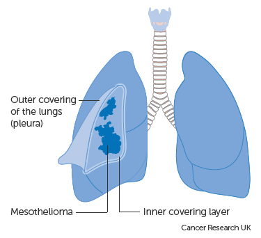 Diagram showing the pleura and mesothelioma