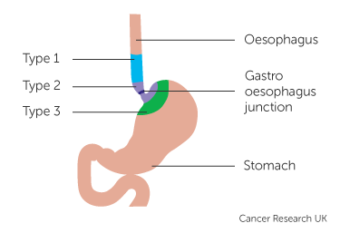 Diagram showing types of gastro oesophageal junction cancer