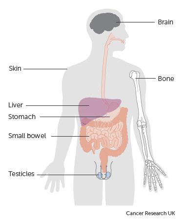 Diagram showing where lymphoma can spread to in the body