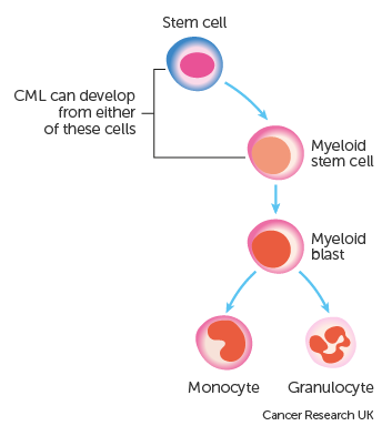 Diagram showing which cells CML can start in
